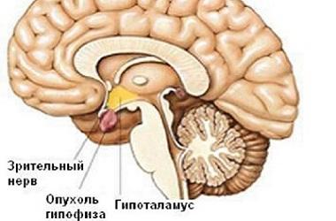 Лечение аденомы гипофиза в Израиле