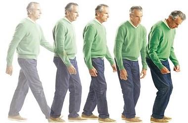 Диагностика и лечение болезни Паркинсона в Израиле