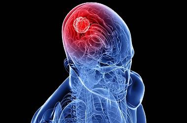 Лечение рака головного мозга в Израиле