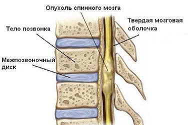 Лечение опухоли спинного мозга в Израиле