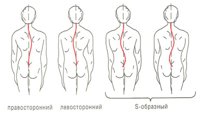 Сколиоз - сложная деформация позвоночника, характеризующаяся, в первую очередь, боковым искривлением позвоночника