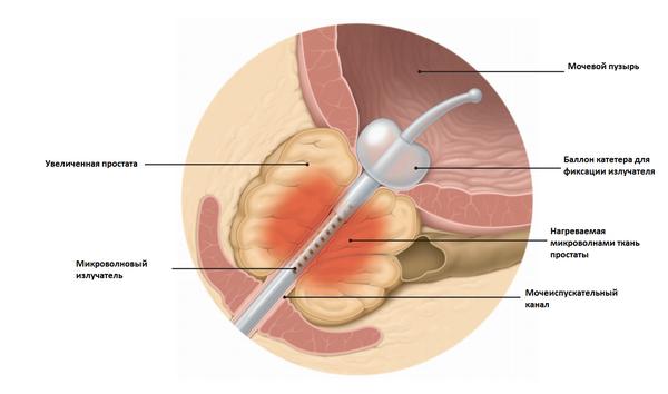 Рак третьей степени предстательной железы