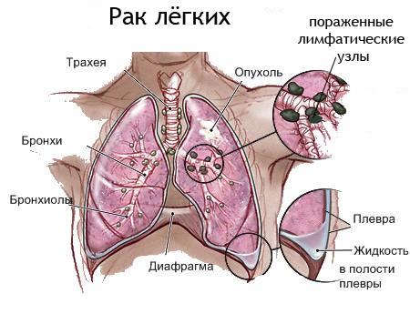 легкие с раком в разрезе