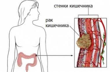 Диагностика и лечение рака кишечника в Израиле
