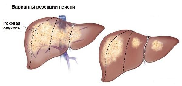 Вирусный гепатит рк