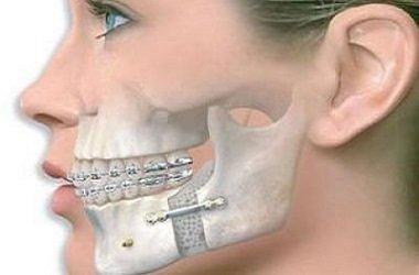 Челюстно-лицевая хирургия в Израиле