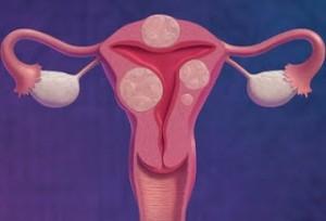 Лечение миомы матки в Израиле в больнице Асаф Арофе
