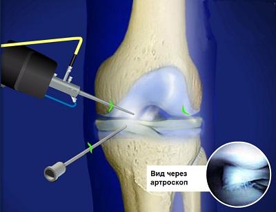 Артроскопия коленного сустава в Израиле
