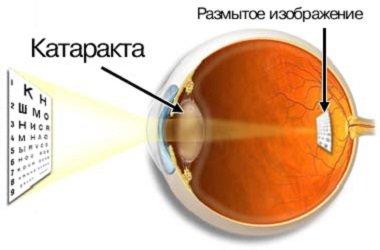 Лечение катаракты в Израиле - 4500 дол.