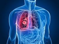 Стоимость диагностики и лечения рака легких в Израиле