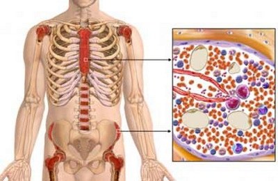 Лечение миелодиспластического синдрома в Асаф ха Рофэ
