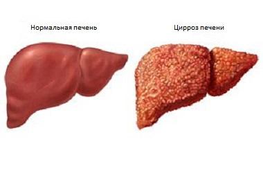 Лечение цирроза печени в Израиле