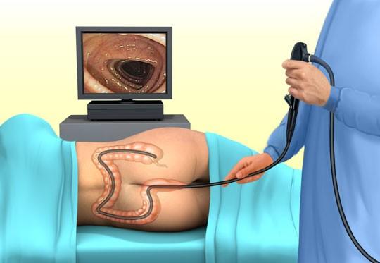 Гастроэнтерология в Израиле - Лечение в Израиле