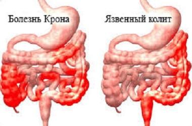 Диагностика и лечение болезни Крона в Израиле